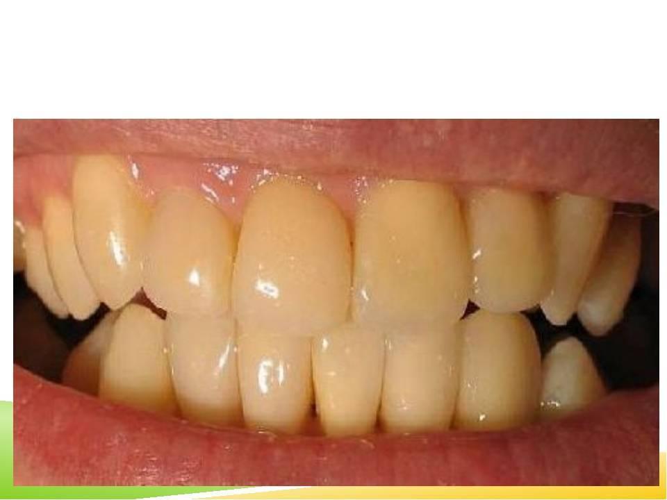 Желтый налет на зубах у ребенка: причины, разновидности, профилактика