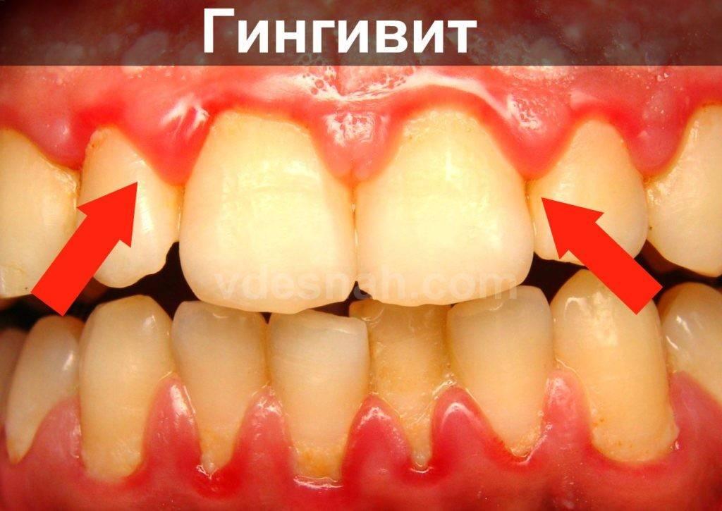 Воспаление десны около зубов у детей - что делать и чем лечить: фото, лечение