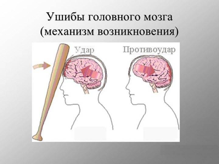 Черепно-мозговая травма у детей. внутричерепные кровоизлияния