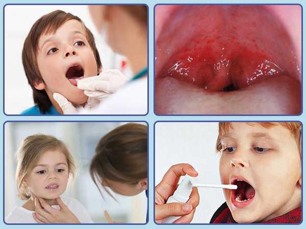 Вирусная ангина у детей: виды (герпетическая, фолликулярная, лакунарная и другие), причины возникновения, симптомы, диагностика, лечение и профилактика + фото