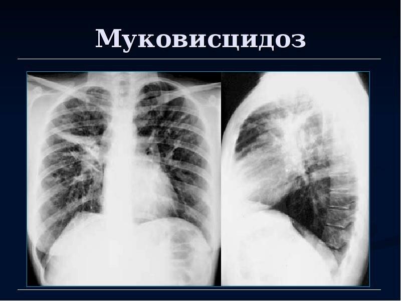 Муковисцидоз у детей: симптомы, лечение, продолжительность жизни