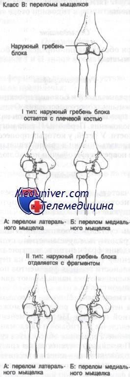Мыщелковый перелом локтевого сустава: правила лечения, определение чрезмыщелковой травмы, особенности возникновения у ребёнка | статья от врача