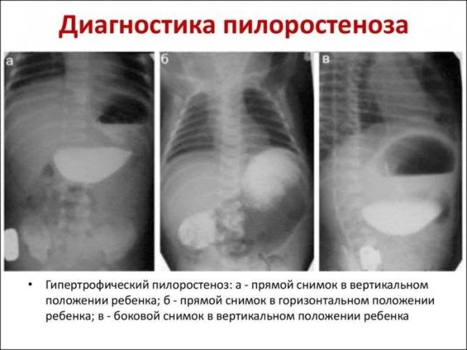 Пилоростеноз у новорожденных: симптомы, диагностика, лечение