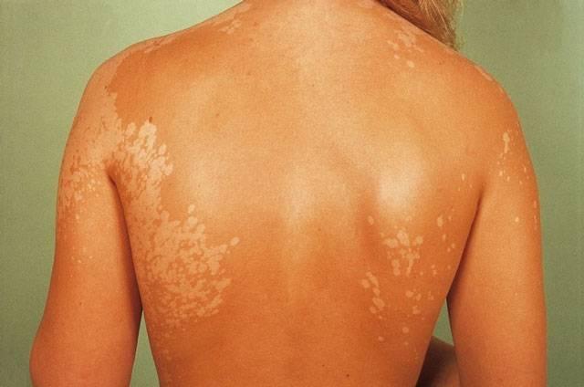Отрубевидный лишай у человека: 6 фото с описанием, симптомы, лечение и причины