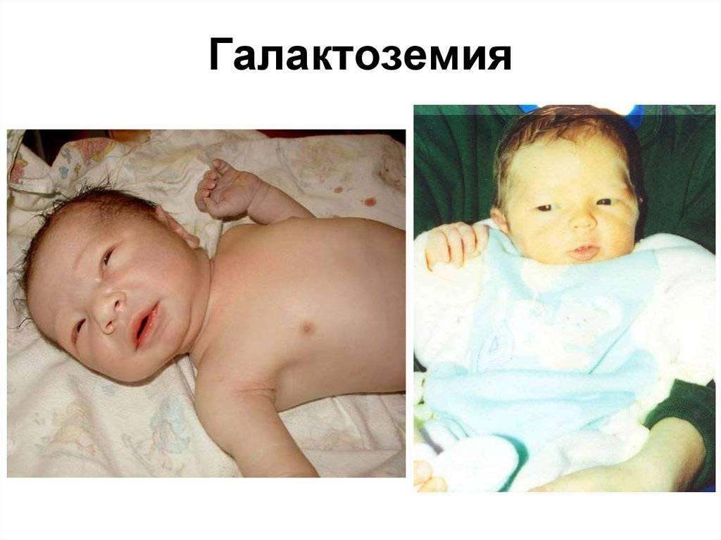 Галактоземия у новорожденных: норма, симптомы, скрининг, лечение