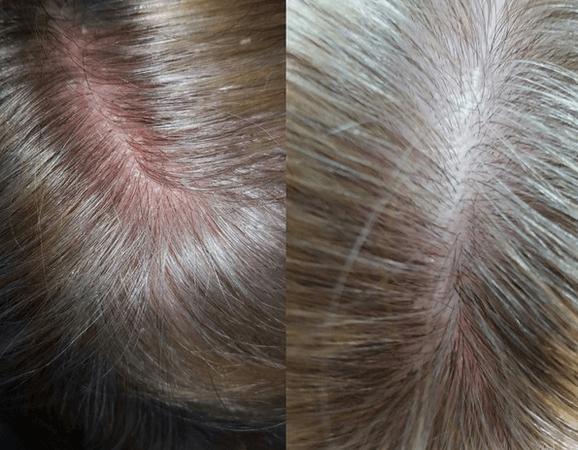 Почему у ребенка шелушится кожа на голове в 2 года