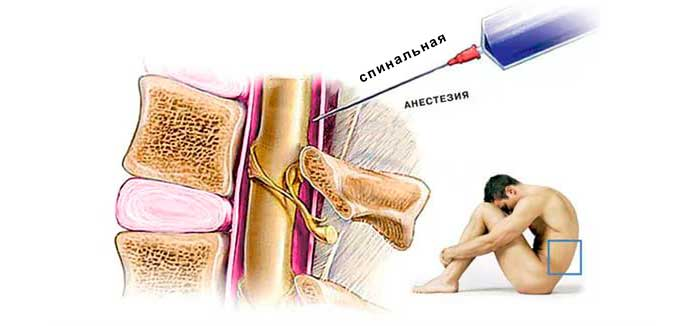 Что делать при болях в спине после введения обезболивающих препаратов для блокады