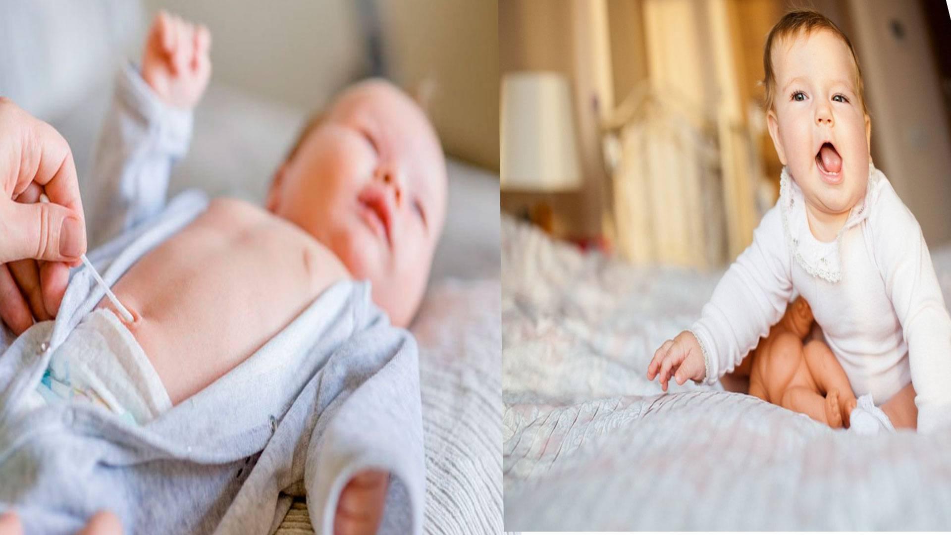 Как лечится гранулема пупка у новорожденных