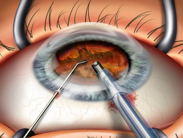 Операция склеропластики глаз у детей как метод лечения близорукости