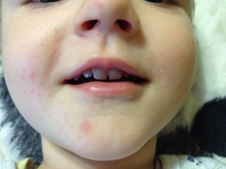 Сыпь от слюней у детей фото