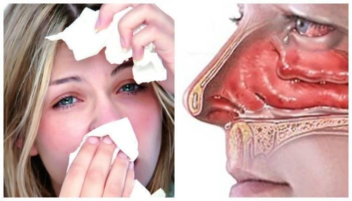 Что делать и как лечить если заложен нос при беременности?