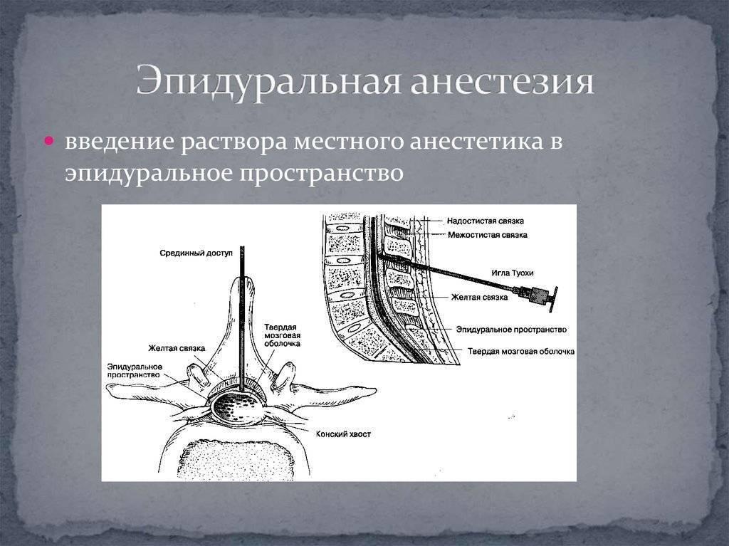 В какой отдел позвоночника делают эпидуральную анестезию