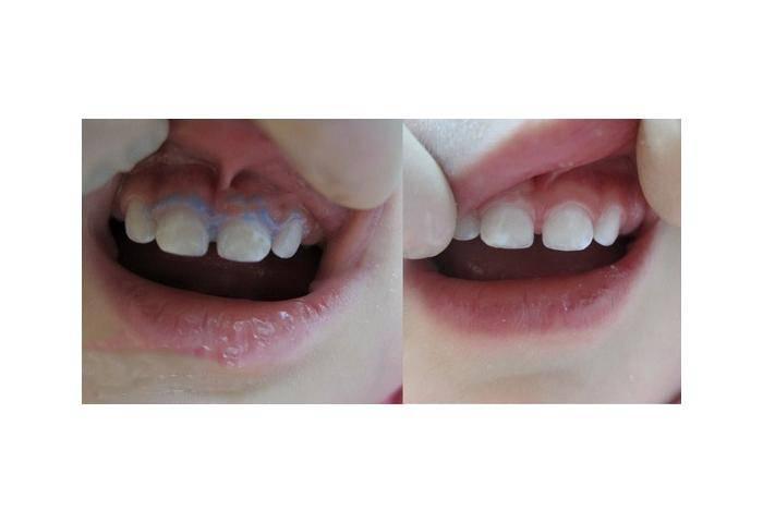 Фторирование зубов, виды, особенности, показания и тонкости