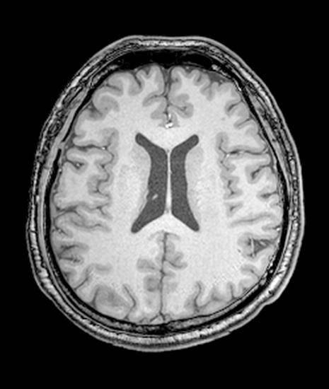 Расширение желудочков головного мозга у грудничка