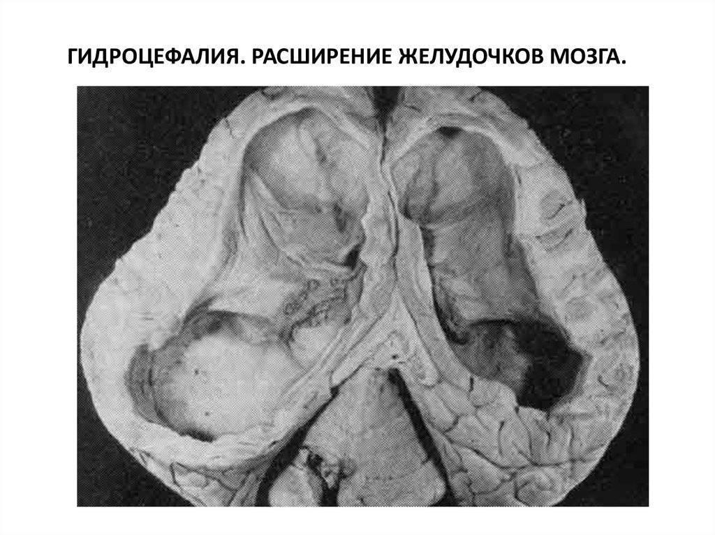 Причины и последствия возникновения дилатации боковых желудочков головного мозга у новорожденных