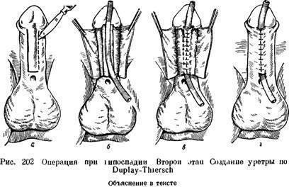 Гипоспадия у мальчиков ????: что это такое, фото у новорожденных детей, головчатая, венечная и другие | konstruktor-diety.ru