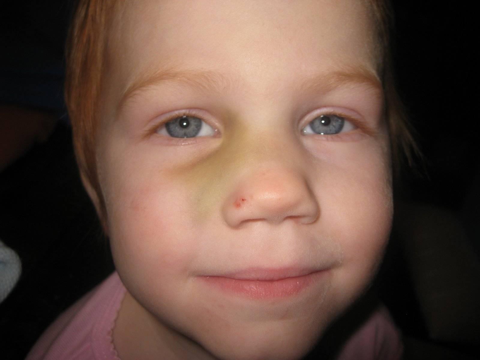 Перелом носа у ребенка: лечение, симптомы, первая помощь и реабилитация