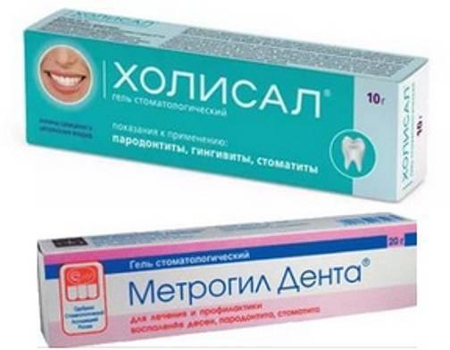 Стоматит во рту у взрослого: эффективное лечение