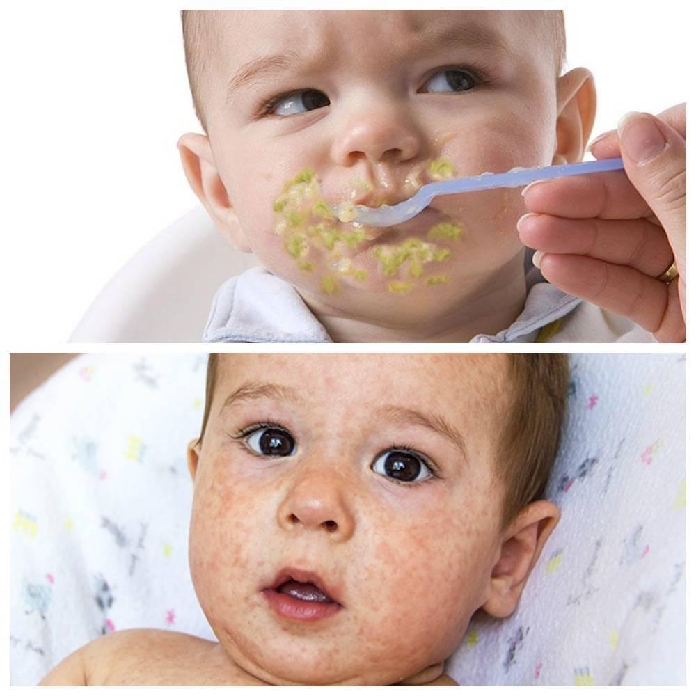 Аллергия на кабачок у ребенка: причины, симптомы, первый прикорм