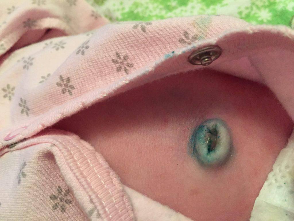 Кровит пупок у новорождённого: насколько это опасно, что это значит. что делать, если кровит пупок у новорождённого | | женский журнал tatros.info