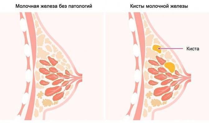 За сколько дней до месячных начинают болеть молочные железы?