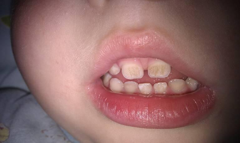 Налёт на зубах у ребёнка: что означает его цвет, причины появления