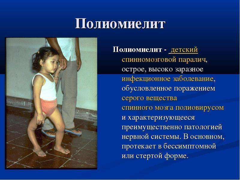 Полиомиелит у детей: симптомы и признаки, лечение заболевания