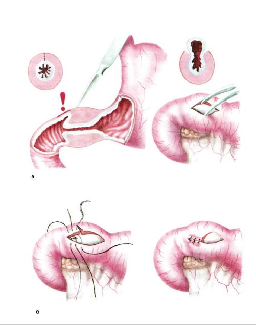 Пилоростеноз: симптомы, диагностика и лечение (операция, восстановление)
