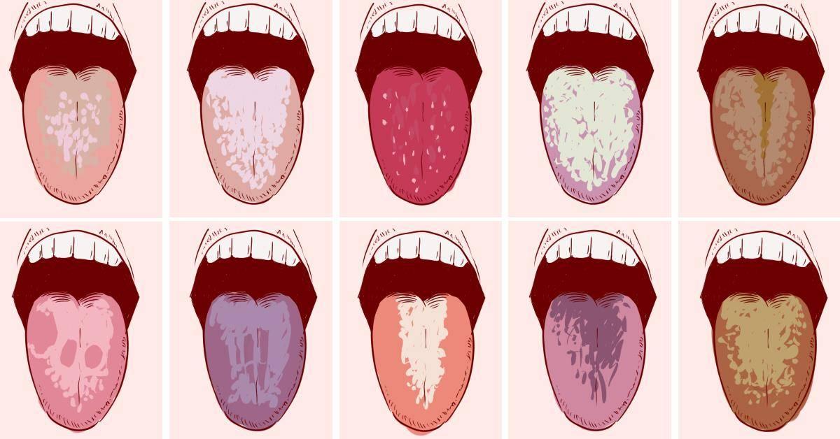 Причины образования горечи во рту при беременности на разных сроках