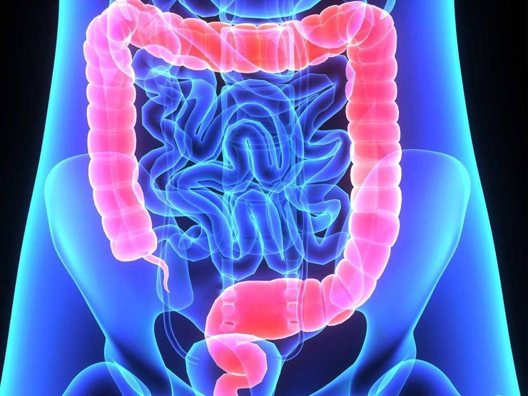 Долихосигма кишечника у детей что это такое - пищеварительная система