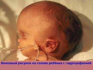 Отек мозга у новорожденного: симптомы и последствия отека у недоношенных детей, причины и признаки