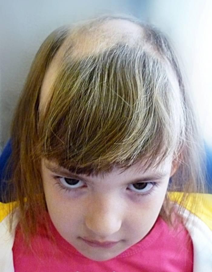 Выпадают волосы у грудничка: причины и их устранение