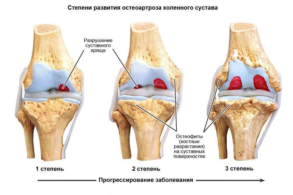 Как проявляется артрит коленного сустава у детей?