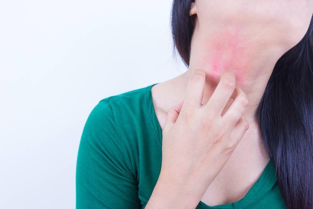 Аллергия у ребенка по всему телу