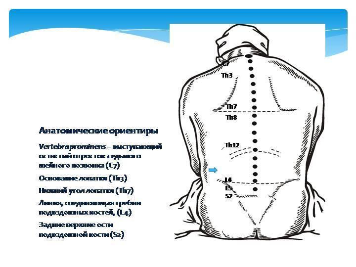 Отличие спинальной и эпидуральной анестезии. чем отличается спинальная анестезия от эпидуральной