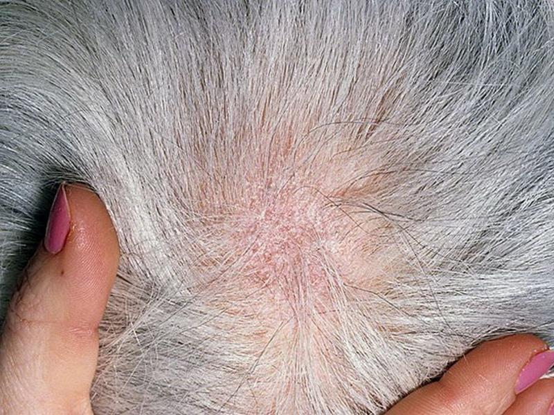 Лишай волосистой части головы — фото с описанием симптомов, лечение, причины
