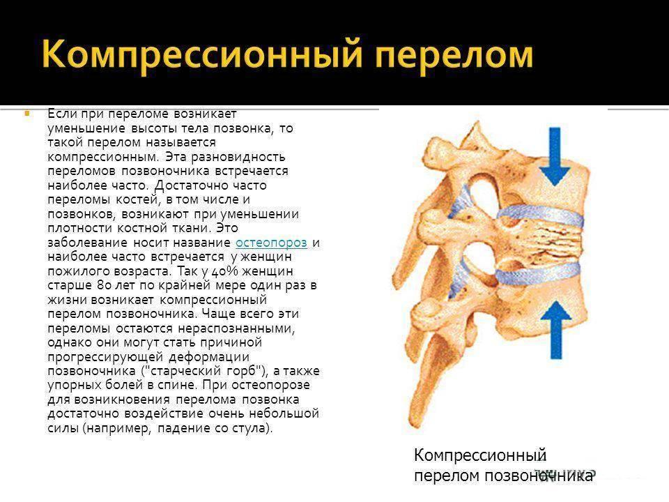 Компрессионный перелом позвоночника у детей, взрослых: симптомы, лечение, реабилитация и последствия