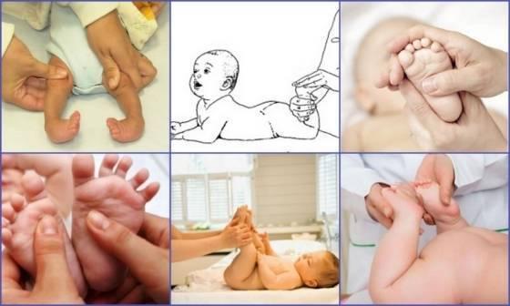 Показания к проведению массажа при косолапости у детей
