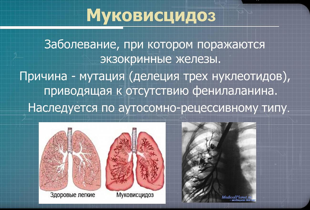 Муковисцидоз у детей: симптомы и формы болезни с фото, лечение и диагностика