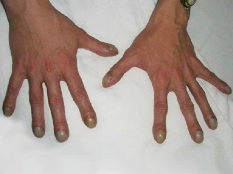 Болезнь нотта: причины, симптомы и методы лечения   все о суставах и связках