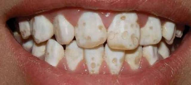 Серые пятна на зубах у ребенка: фото, причины, как убрать?
