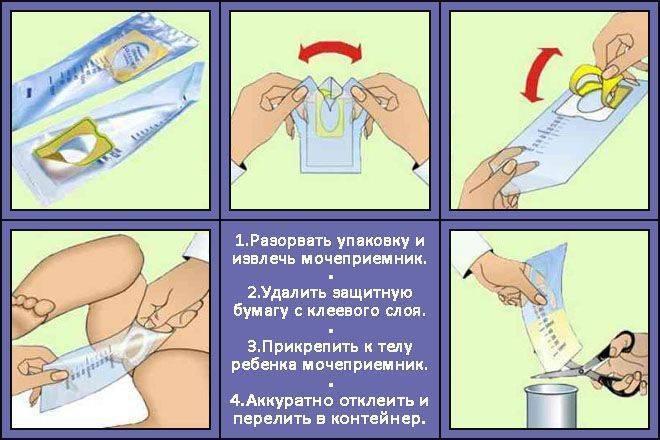 Как правильно сдавать анализ мочи при беременности с ватным тампоном?