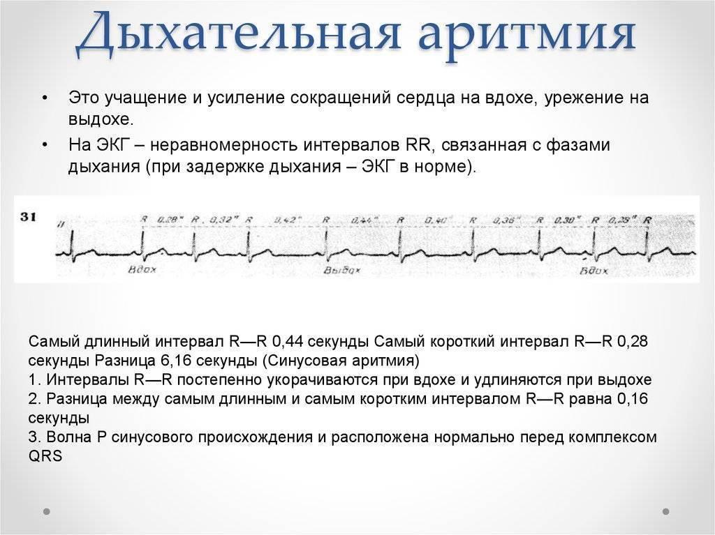 Синусовая аритмия у детей 10 лет — сердце