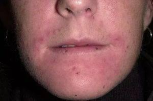 Золотистый стафилококк у ребенка (34 фото): что это такое, как передается, симптомы и лечение, чем вылечить болезнь в кишечнике и на коже