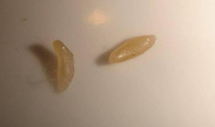 Яйца гельминтов в кале что это - про паразитов