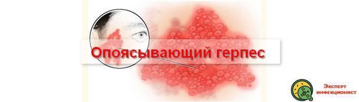 Как и чем лечить опоясывающий лишай: современные средства,быстров домашних условиях,таблетки ипрепараты | pro-herpes.ru