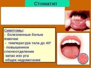 Откуда берется запах ацетона изо рта у детей