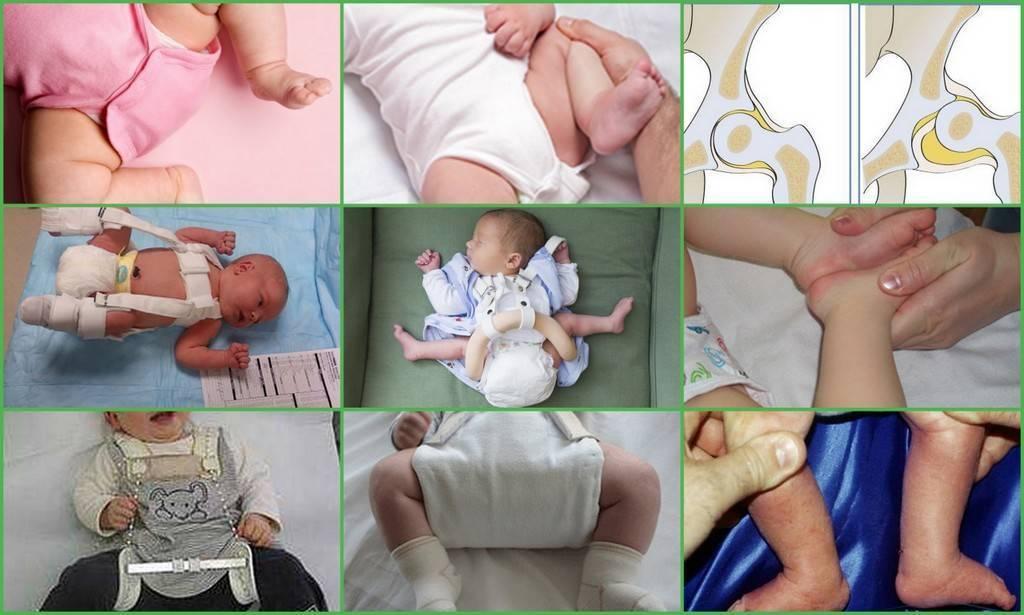 Массаж при дисплазии тазобедренного сустава у грудничков