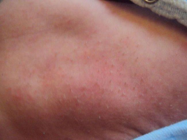 Щетина у новорожденных или кочерга: фото на ушах, спине, теле | гигиена | vpolozhenii.com