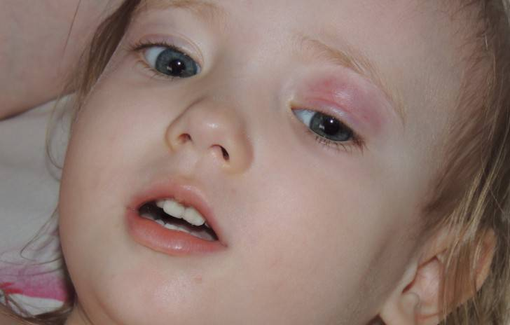 Отек глаз у ребенка после сна: почему с утра опухают веки, причины у грудничков и детей постарше